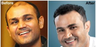 Virendar Sehwag before after hair transplant