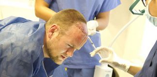 Wayne Rooney hair transplant procedure
